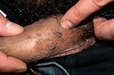Penile warts